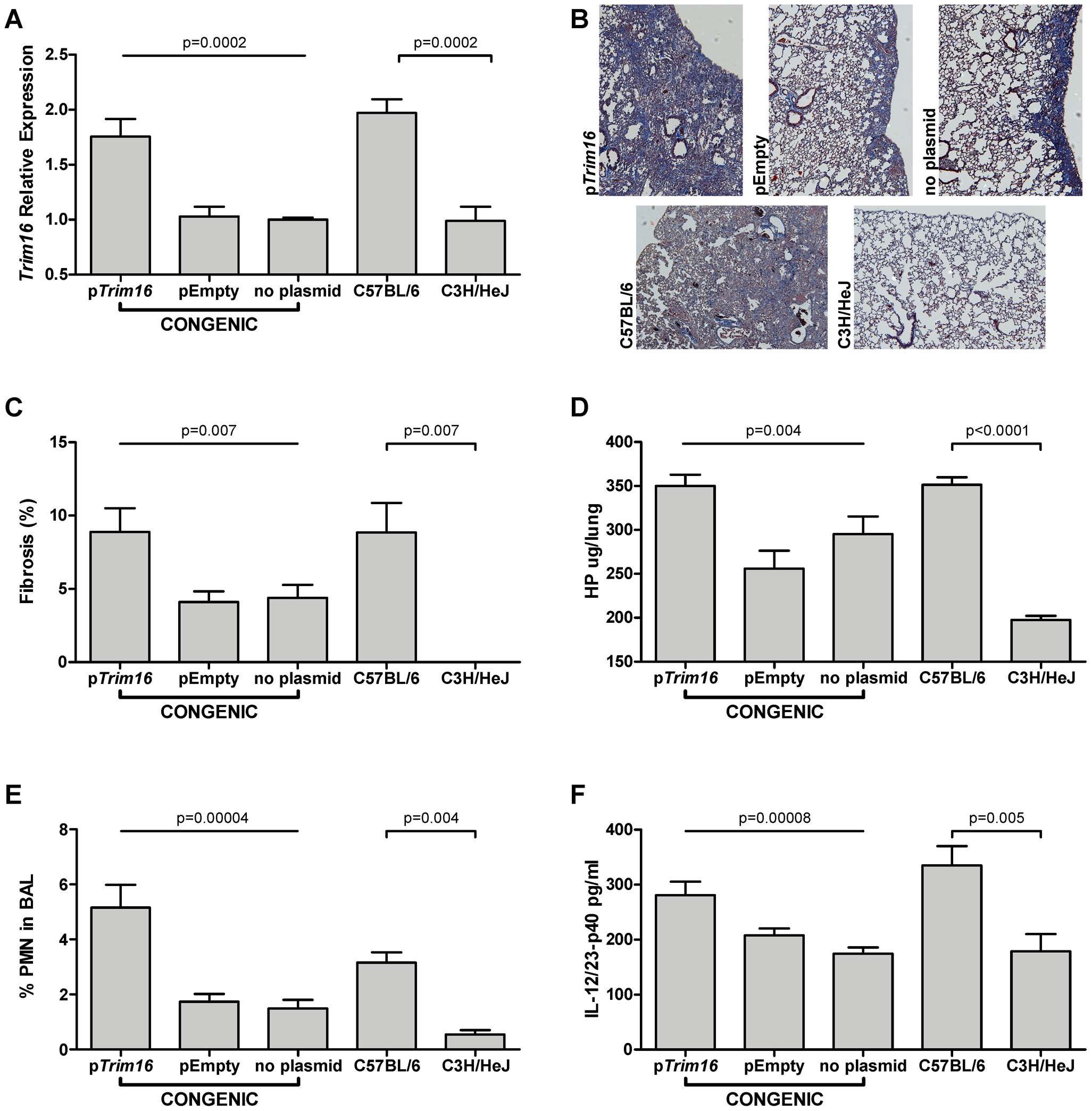 <i>Trim16</i> over-expression increases pulmonary fibrosis in <i>Blmpf2</i> subcongenic mice.