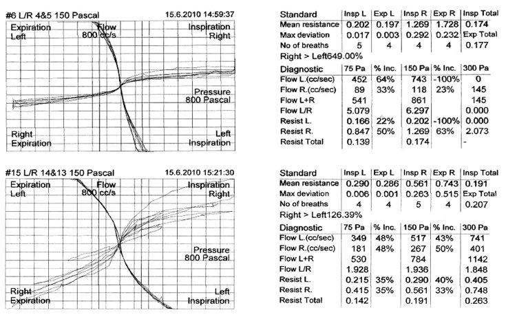 Kontralaterální rinomanometrie, horní graf před aplikací nafazolinu a 21 minut po něm, rezistence vpravo se signifikantně zmenšila.