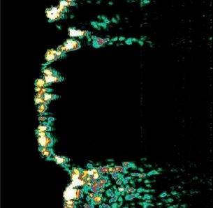 Verruca seborrhoica (záda)
