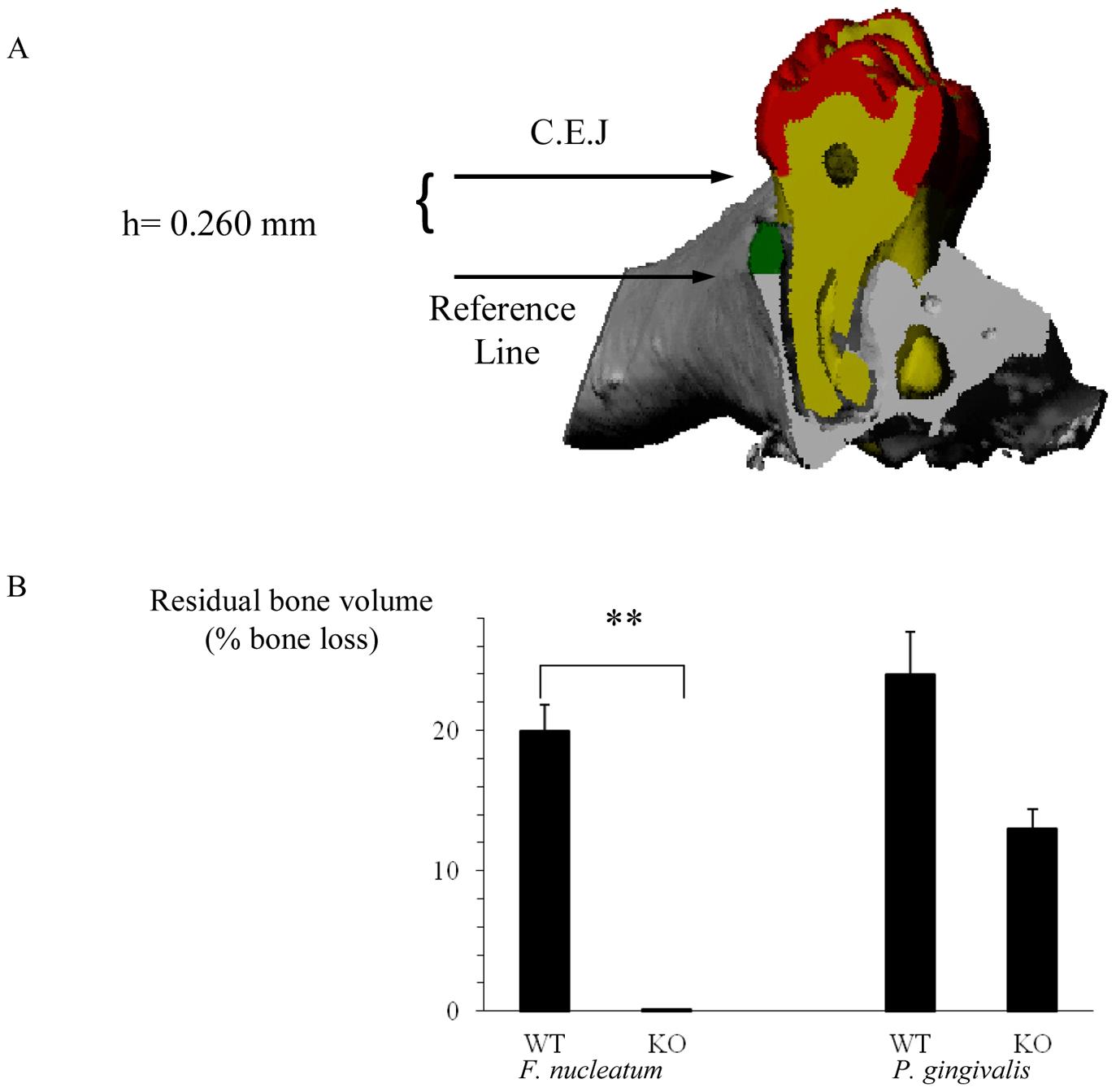 NCR1-dependent bone loss.