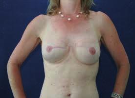 Stav po dokončené zdařilé oboustranné rekonstrukci prsů