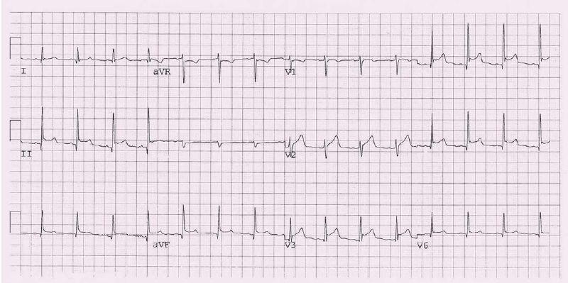 EKG u perikarditidy (konkávní elevace ST úseku ve svodech II, III a VF, V3).