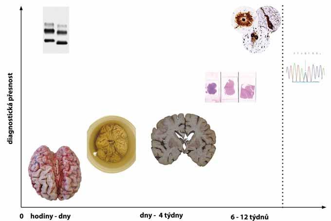 Vztah mezi přesností diagnózy a intervalem od provedení pitvy. Nejméně diagnosticky přínosné je makroskopické zhodnocení mozku ať už v nativním stavu či po jeho fixaci. K dosažení přesné finální diagnózy je třeba fixovaný mozek vyšetřit mikroskopicky za užití standardních barvení a speciálních imunohistochemických metod. Zvláštní postavení má detekce patologické formy prionového proteinu metodou western blot, která může poskytnout výsledek do druhého dne po pitvě pacienta. Molekulárně genetické vyšetření (vpravo) lze využít ke stanovení vlastní diagnózy (např. Huntingtonovy nemoci) nebo k detekci familiárních forem neurodegenerativních onemocnění a může trvat, podle počtu a spektra testovaných genů, i několik měsíců. Fig. 2. Relationship between diagnostic accuracy and time from autopsy. Macroscopic examination of either the native or fixated brain has the lowest diagnostic accuracy. For achieving the highest possible accuracy, the brain has to be examined under the microscope using both standard and special immunohistochemical staining techniques. Western blot detection of proteinase-resistant prion protein can, however, provide results already on the next day after the autopsy. Genetic analysis (right) can, in selected neurodegenerative diseases (e.g. Huntington's disease), be diagnostic or can be used to assess the presence of heritable pathological mutations in selected genes associated with neurodegenerative diseases. This may take several months depending on what and how many genes are tested and by which method.