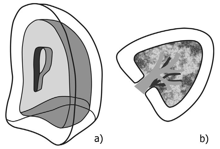 Schéma anatomie pohrudniční dutiny – uspořádání obou listů pleury: a) zevní pohled, b) transverzální řez v rovině plicního hilu  Fig. 1: Diagram of the pleural cavity anatomy – arrangement of both layers of the pleura: a) external view, b) transversal cross-section at the level of the lung hilum