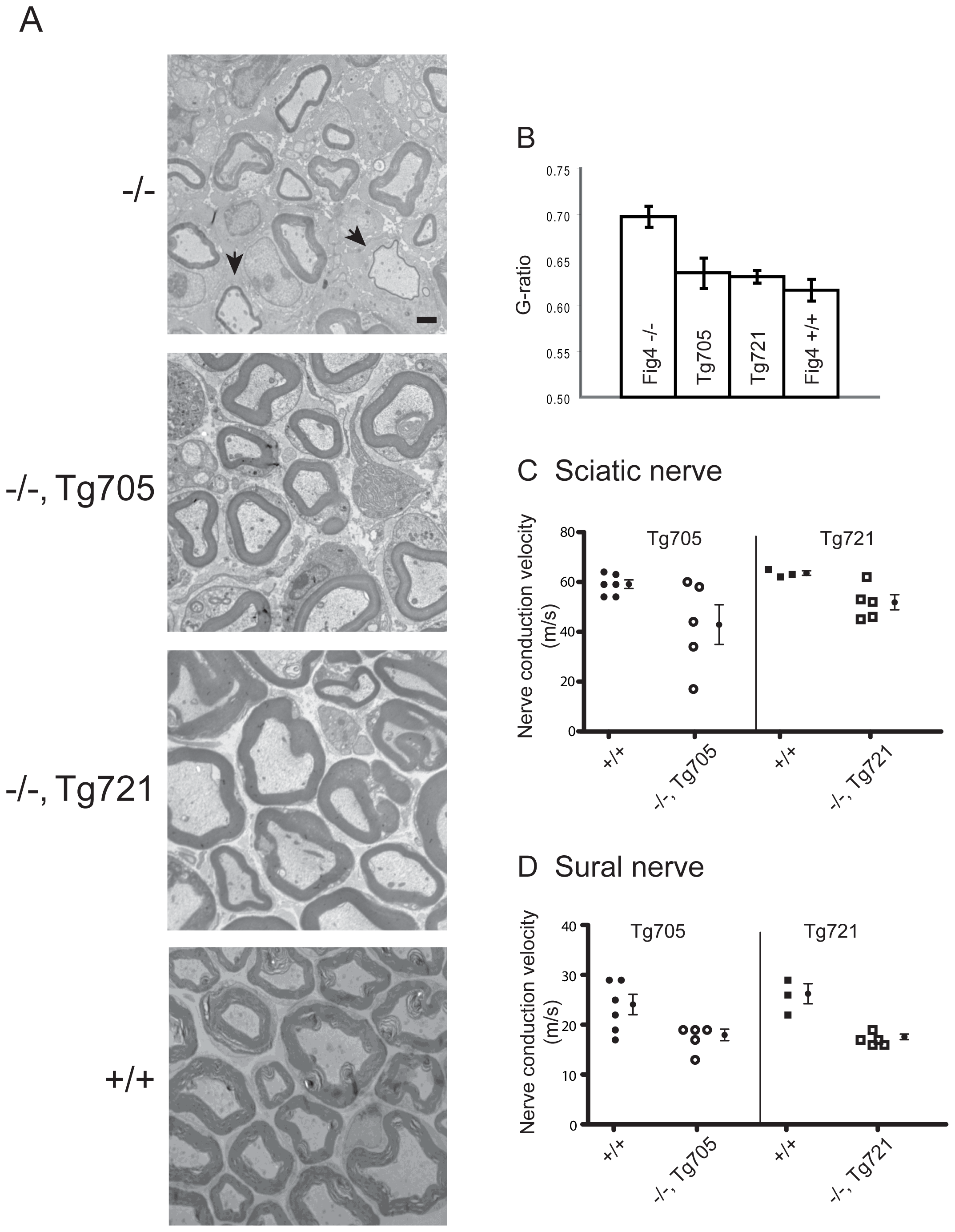 Rescue of peripheral nerve myelination and nerve conduction velocity in transgenic Tg705 and Tg721 lines.