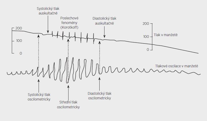 Schéma oscilometrie