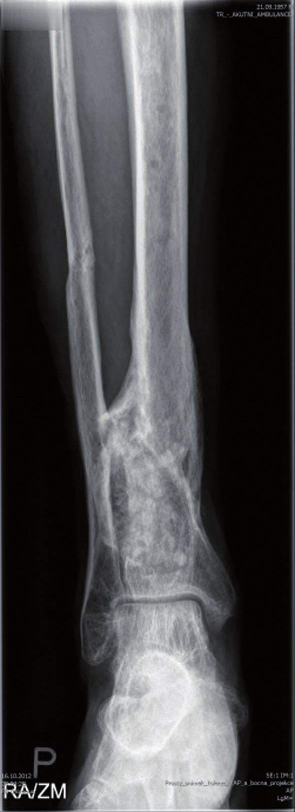 RTG po spongioplastice a aplikaci PerOssalu