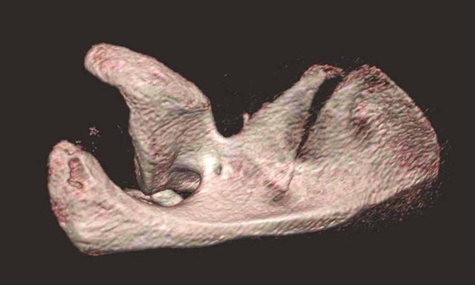 Třídimenzionální CT rekonstrukce – pohled do supraspinátní jámy Ze všech čtyř rekonstrukcí je patrné, že se jedná o vzácnou transpinózní zlomeninu krčku. Fig. 5: Three-dimensional CT reconstruction – view of the supraspinous fossa  All four reconstructions document a rare transspinous fracture of the scapular neck.