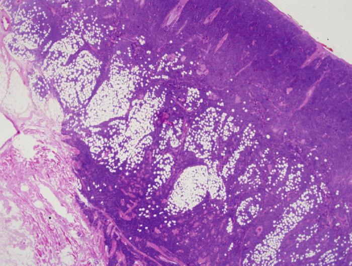 Prehľad nádorovej infiltrácie dermis, subkutis a priečne pruhovanej svaloviny nádorovými bunkami (farbenie HE, zväčšenie 10x).