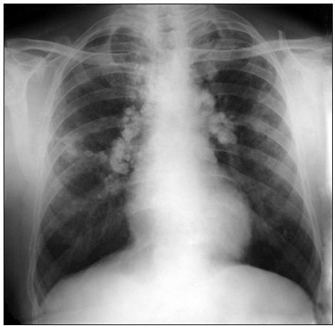 Obr. 5. Reziduálne zmeny po interlobárnej pleuropneumonii vpravo