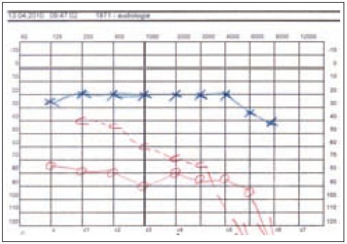 Těžká smíšená nedoslýchavost vpravo, praktická hluchota u pacientky 1.
