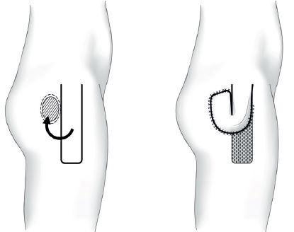 Trochanterický dekubitus – fasciokutánní lalok m. tensor fasciae latae Fig. 3: Trochanteric pressure ulcer – tensor fasciae latae fasciocutaneus flap