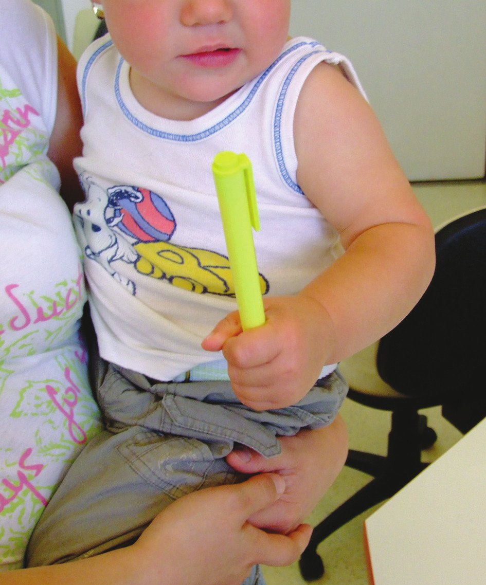 Fig. 7. Active grip 8 months after surgery, age 15 months