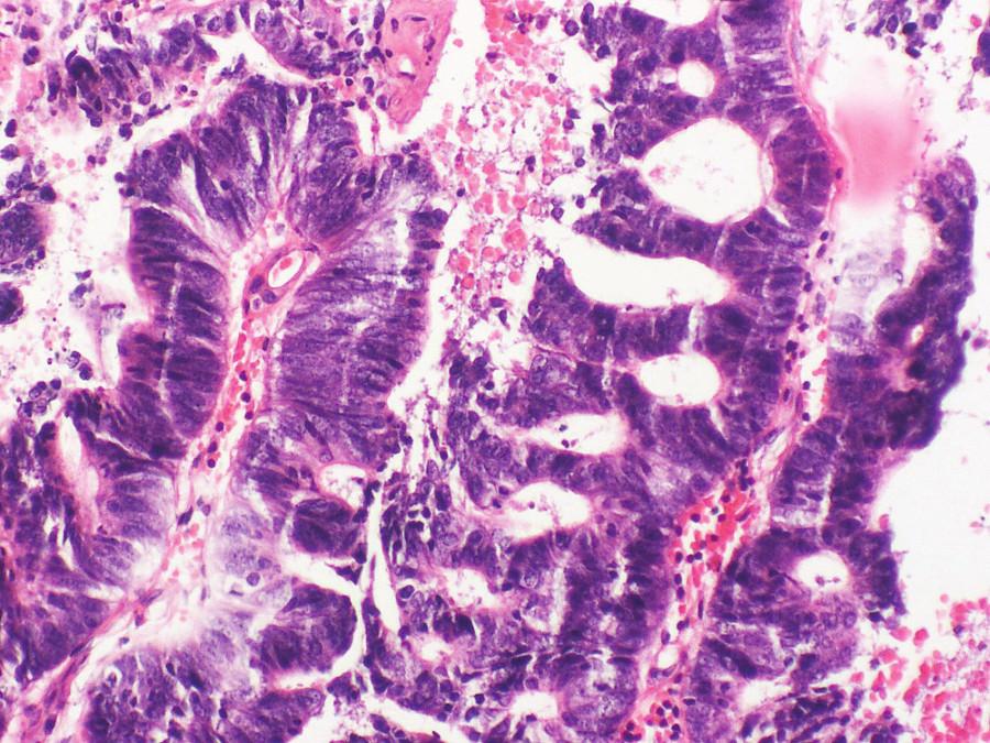 Histologické vyšetření metastázy adenokarcinomu do míchy. Barvení hematoxylin-eosin, zvětšeno 200krát.