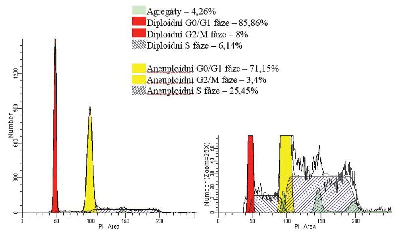 Analýza DNA. Jednoparametrický histogram znázorňuje na ose x intenzitu signálu související s množstvím navázaného fluorescenčního barviva propidium iodidu (PI) a na ose y množství buněk. Cytometrická analýza DNA je založená na schopnosti PI vázat se stechiometricky na nukleové kyseliny. Pokud je barvivo podáno v nadbytku, je intenzita fluorescence jednotlivých buněk přímo úměrná obsahu DNA v buňce. U diploidních buněk v G0/G1 fázi je poloviční ve srovnání s buňkami v G2/M fázi. U S fáze, díky tomu, že dochází k syntéze DNA, se fluorescence buněk zvyšuje. Cytometrista však není schopen pomocí této metody odlišit buňky v G0 fázi od buněk v G1 fázi, stejně jako buňky v G2 fázi od buněk v M fázi, jelikož obsah DNA je ve srovnávaných fázích cyklu stejný. Uvedený histogram ilustruje směs diploidních a aneuploidních buněk izolovaných z tkáně suspektního non-Hodkinského lymfomu, které se liší obsahem DNA a proliferační aktivitou. Diploidní buňky (znázorněny červeně) vykazují nižší proliferační index (součet buněk v S a G2/M fázi) než aneuploidní buňky (znázorněny žlutûě, které mají kromě vyššího proliferačního indexu i vyšší obsah DNA díky chromozomálním aberacím. Analýza DNA zjistila vysokou proliferační aktivitu vyšetřovaných diploidních i aneuploidních buněk a prokázala chromozomální aberace, což nasvědčuje vysoce malignímu procesu. Nález byl v korelaci s imunofenotypizací průtokovu cytometrií a histologickým vyšetřením, které prokázaly infiltraci tkáně velkobuněčným lymfomem (DLBCL).