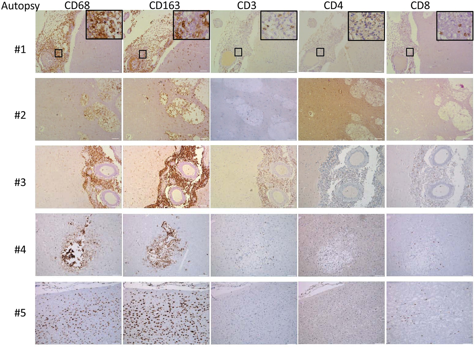 Brain immunohistochemistry staining of brain autopsy specimens from patients who died of s-CNS cryptococcosis demonstrate macrophage and T-cell tissue infiltration.