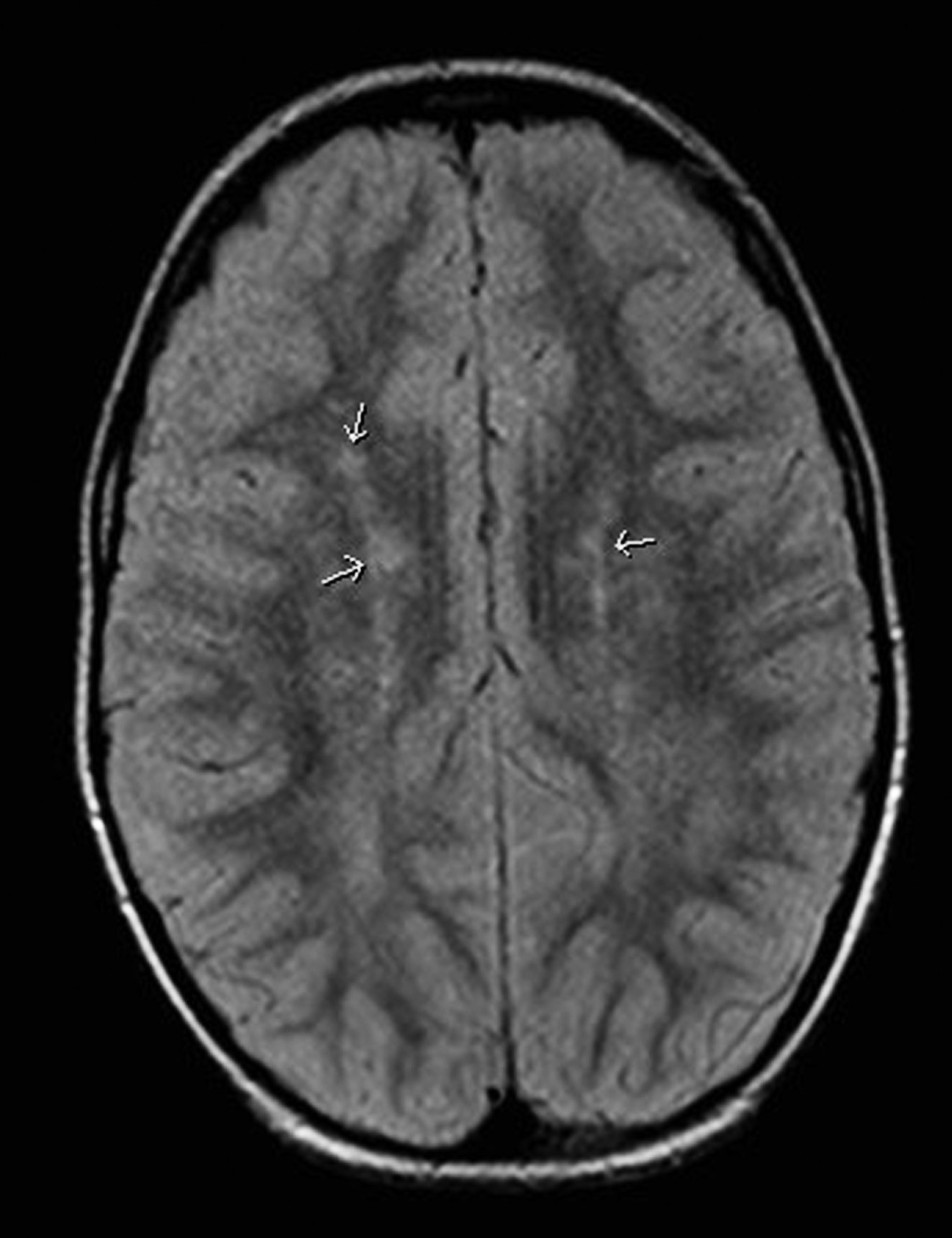 MR mozku, axiální zobrazení, FLAIR sekvence: Vyšetření v odstupu tří měsíců, v bílé hmotě mozku oboustranně frontoparietálně jsou stále přítomná hypersignální ložiska, ale jejich počet je redukován. Fig. 4. MR of the brain, axial representation, FLAIR sequence: examination after three months, hypersignal foci are still present in the brain white matter bilaterally in the frontal parietal representation, but their number is reduced.