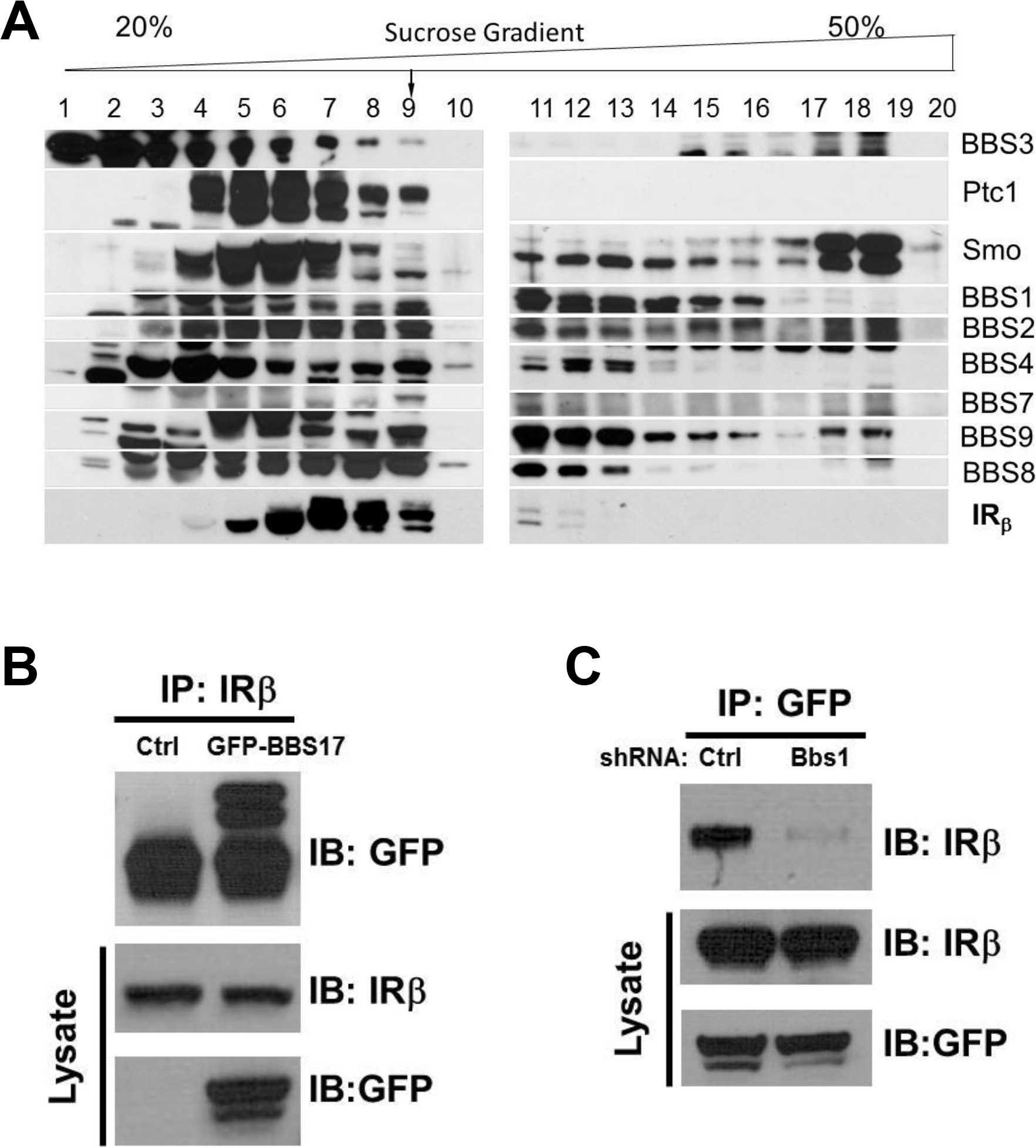 Physical interaction between BBS proteins and IR.