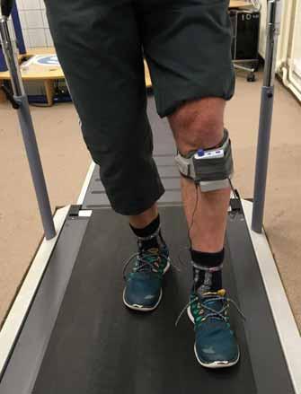 Funkční peroneální neurostimulátoru přístrojového systému WalkAide. Fig. 1. Functional electrical stimulation of peroneal nerve with WalkAide neurostimulator.