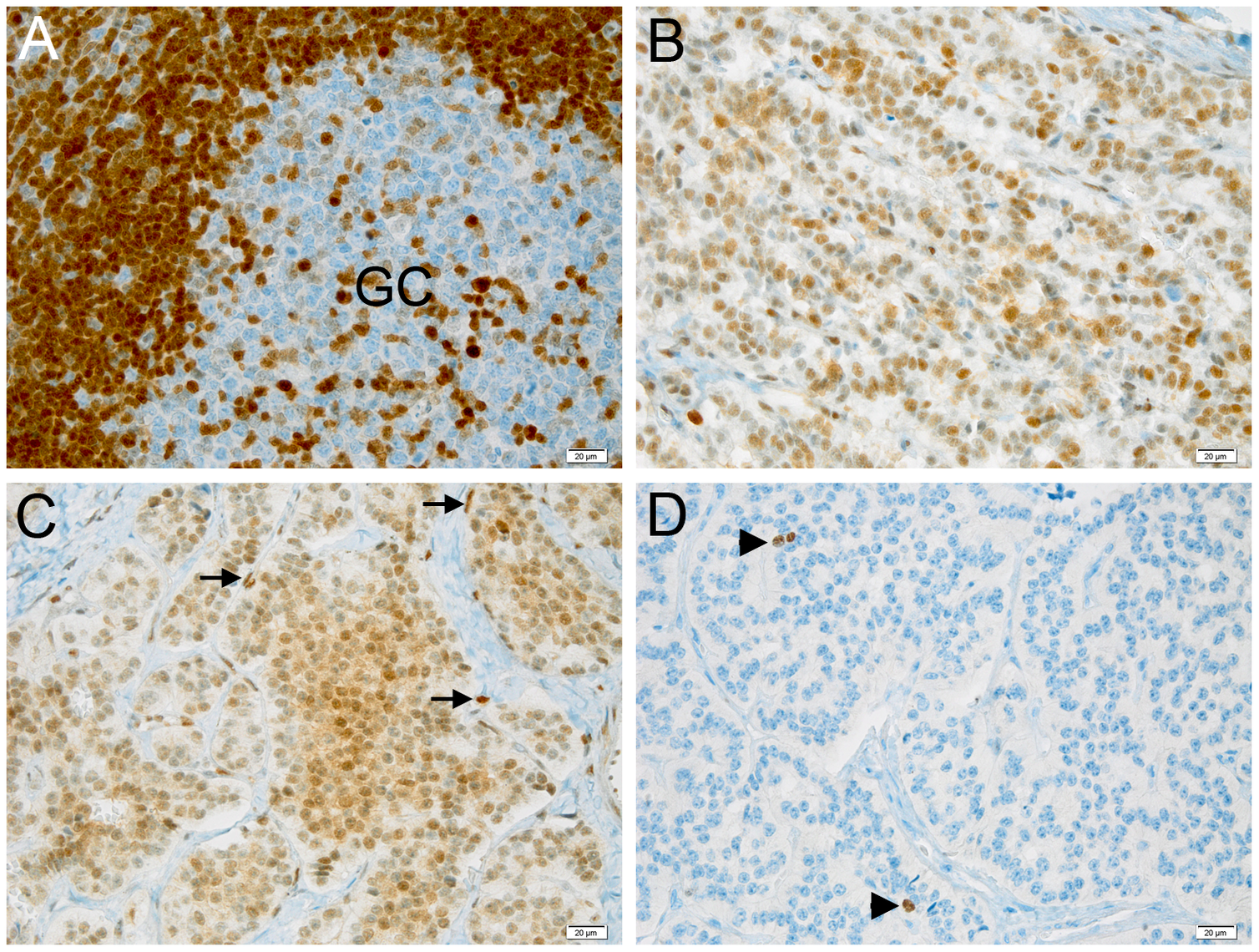 Expression of p27<sup>KIP1</sup> and Ki-67 in pancreatic tumors and control tissue.