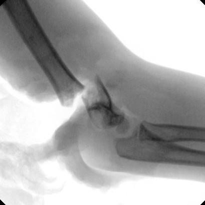 Obr. 2b, c: Pacient č. 2. Semiamputace paže v suprakondylické oblasti; b - RTG úrazový snímek v AP projekci, c - RTG úrazový snímek v bočné projekci