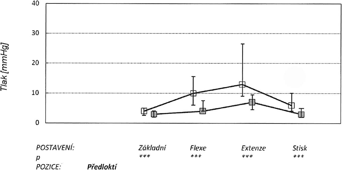 V grafu jsou znázorněny: medián, 25. a 75. percentil v úrovni předloktí (proximálně od incize) v různých zátěžových pozicích ruky (základní neutrální postavení, maximální pasivní flexe, extenze a stisk). Horní křivka znázorňuje tlaky před protětím ligamenta, dolní po protětí. Graph 5. The graph depicts: the median, the 25th and 75th percentiles at the palm level at the distal forearm of the tunnel during various stress positions of the hand (a basic neutral position, the maximum passive flexion, extension and a hand grip). The upper curve depicts pressure measurements prior to the ligament section, while the lower one those after the section procedure.