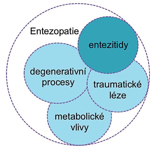 Různé formy entezopatií.