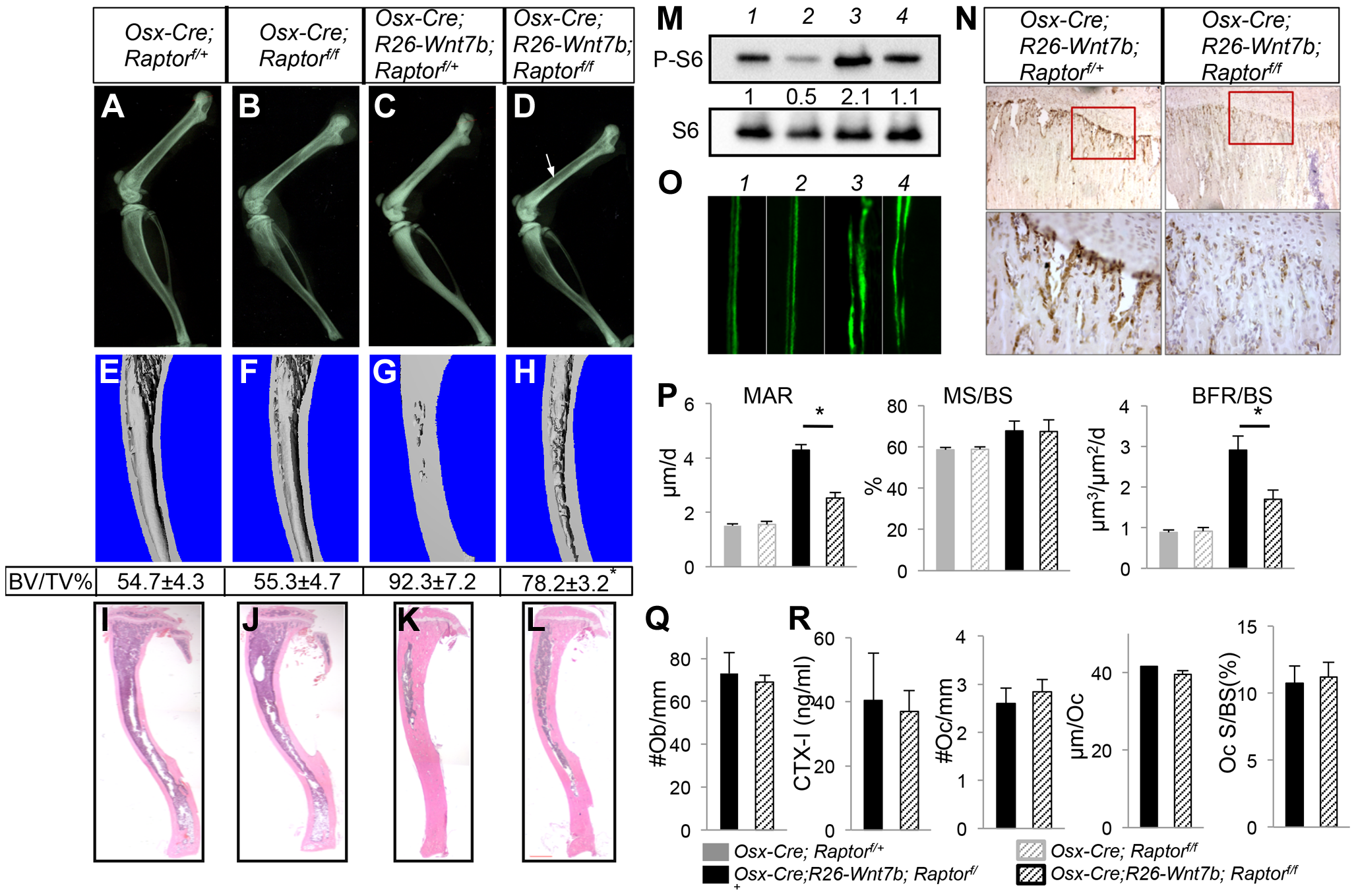 Removal of <i>Raptor</i> partially rescues WNT7B-induced bone formation.