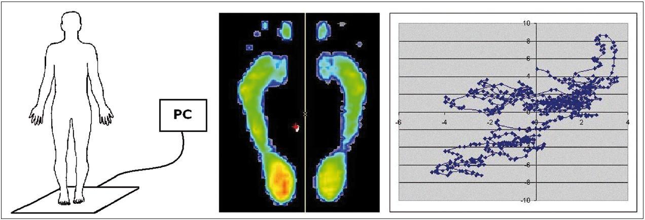 Schéma použití posturografické desky FootScan včetně projekce zátěže chodidel a zobrazení změn průmětu pomyslného těžiště – COP (Centre Of Pressure) do podložky v čase.