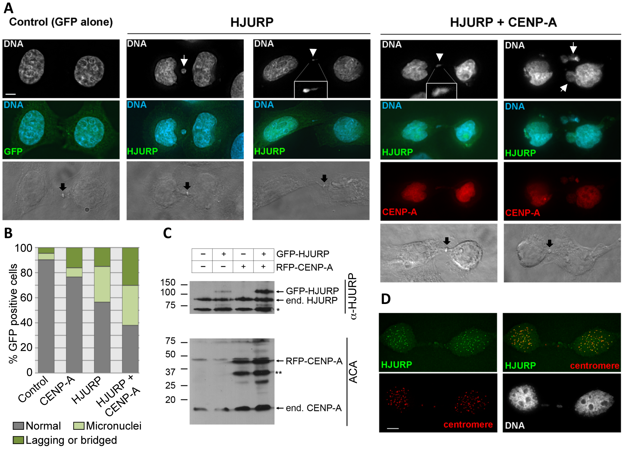 Chromosome segregation errors in human cells over-expressing of <i>HJURP</i> and <i>CENP-A.</i>