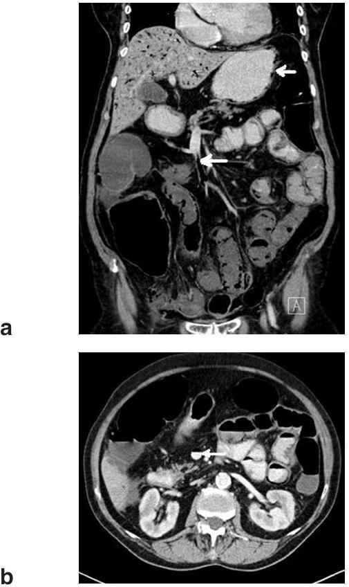 Obr. 1a)b): Vstupní CT vyšetření břicha: Vzduch v horní mezenterické žíle (velká šipka), pnematoza střevní stěny a plyn ve stěně žaludku (malá šipka) Fig. 1a)b): Admission abdominal CT scan: Gas in the upper mesenteric vein (large arrow), pneumatosis intestinalis and gas in the gastric wall (small arrow)