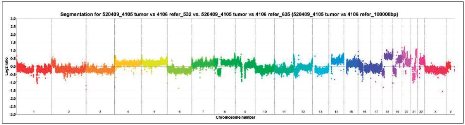 Vyšetření array komparativní genomová hybridizace (aCGH), je patrná například ztráta chromozomů 1, 2, 3, 6, 10, 11, 13 Fig. 1. Array-comparative genomic hybridisation (aCGH) showing for example loss of chromosomes 1, 2, 3, 6, 10, 11, 13