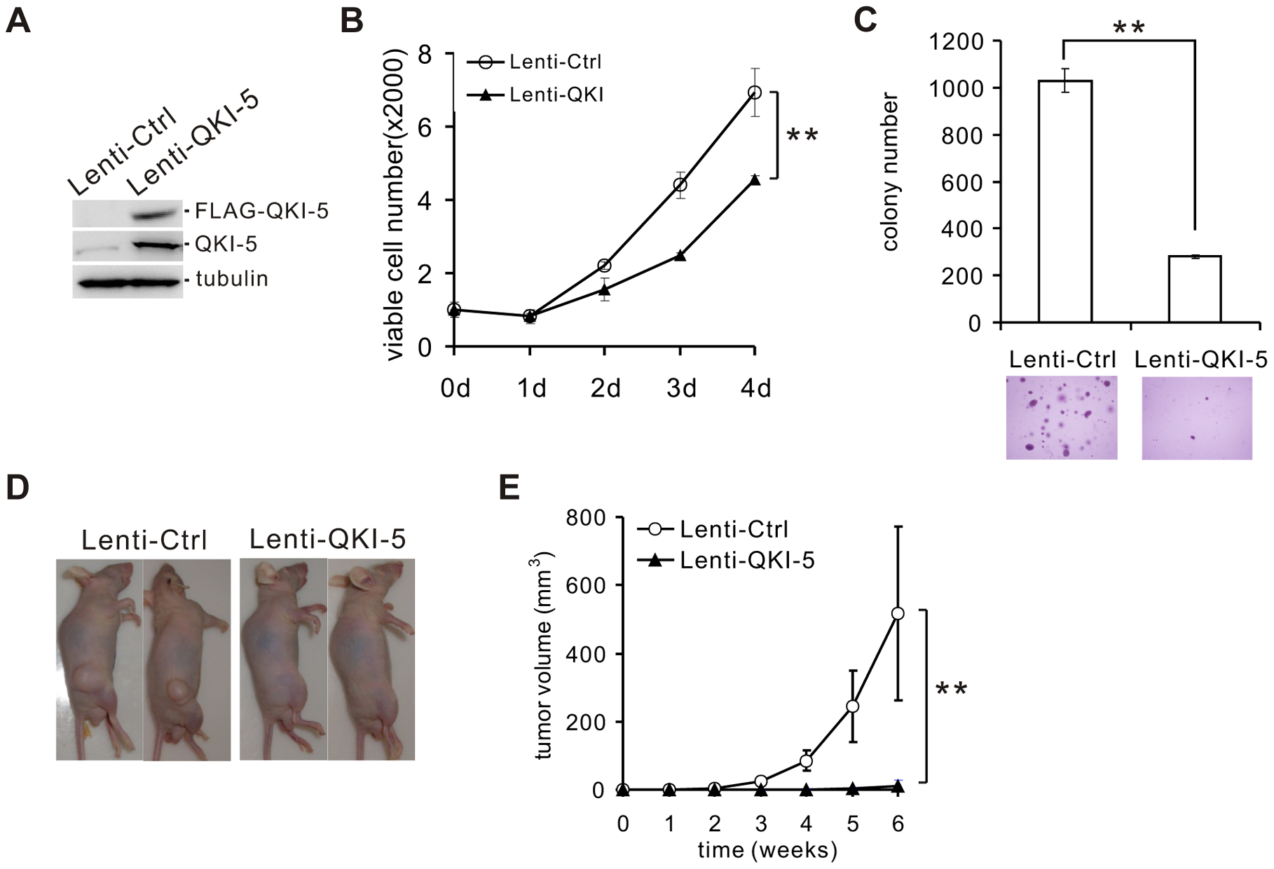 QKI-5 inhibits lung cancer cell proliferation and transformation.