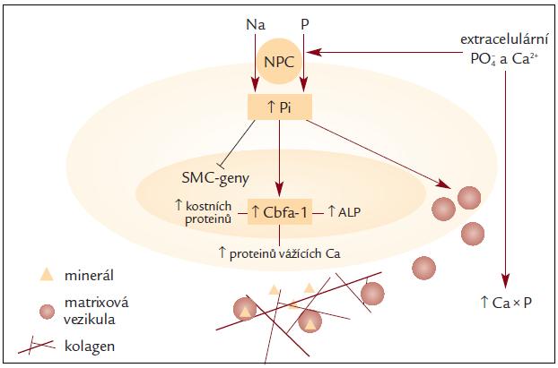 Schéma 3. Při vzniku mediálních cévních kalcifikací je klíčovým faktorem hyperfosfatemie (PO4↑). Činností Na/P kotransportéru (NPC) se dostává fosfor z extracelulárního prostoru do hladké svalové buňky cév. Zvýšený intracelulární obsah fosfátů zásahem do exprese genů způsobí změny, které v konečném důsledku přispívají k tvorbě bioapatitu; podle [8].