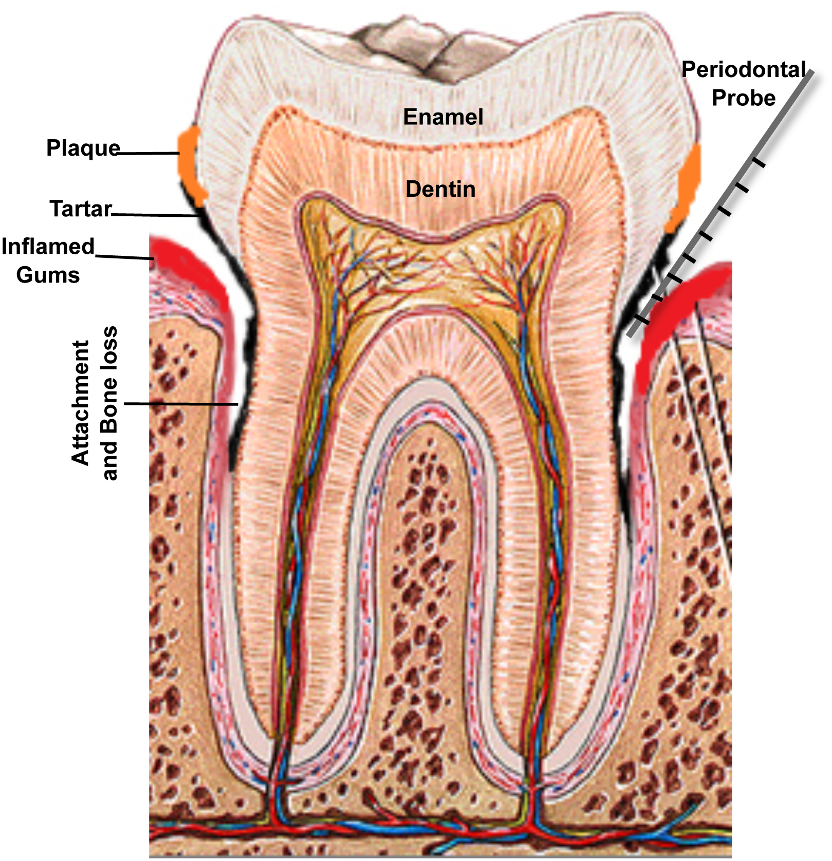 A schematic of the human tooth illustrating the process of periodontal disease development.