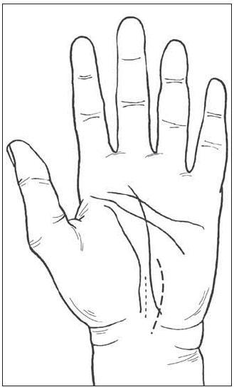Kožní řez autora (mediálně <em>v linea vitalis</em>) a řez podle S. MacKinnon při operaci SKT.