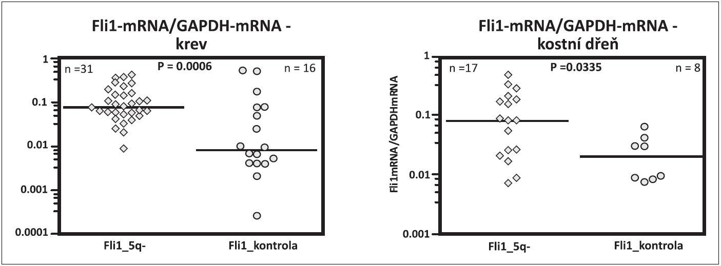 Fli1 mRNA v krvi a v kostní dřeni u pacientů s 5q- syndromem a u zdravých kontrol srovnatelného věku.