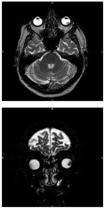 Obr. 2. 3. Tumorózní expanze přisedlá na dorsolaterální stěnu očního bulbu vlevo, bez zřetelné propagace retrobulbárně.
