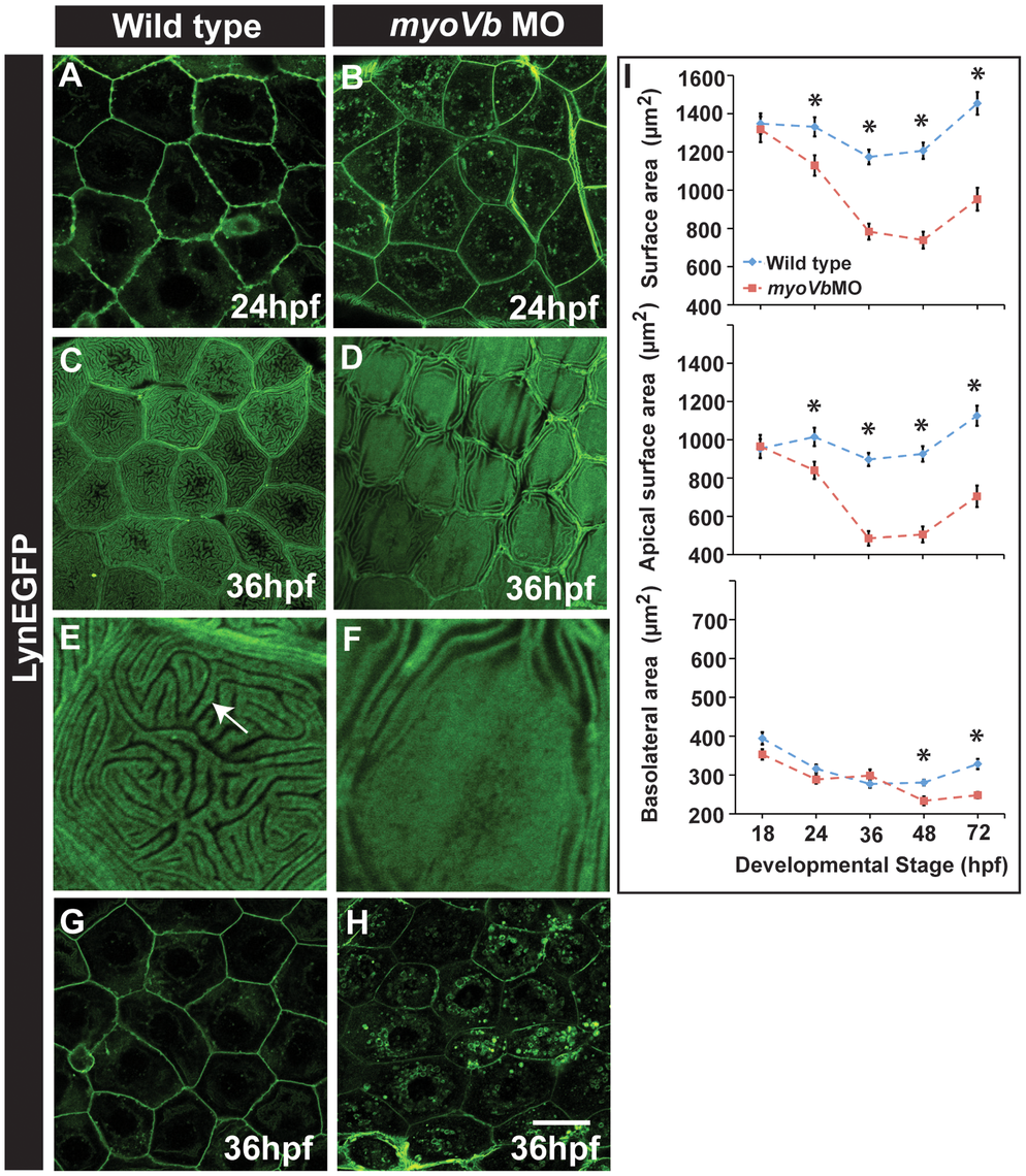 Effect of loss of <i>myosin Vb</i> function on membrane projections, cell size and cell surface area.