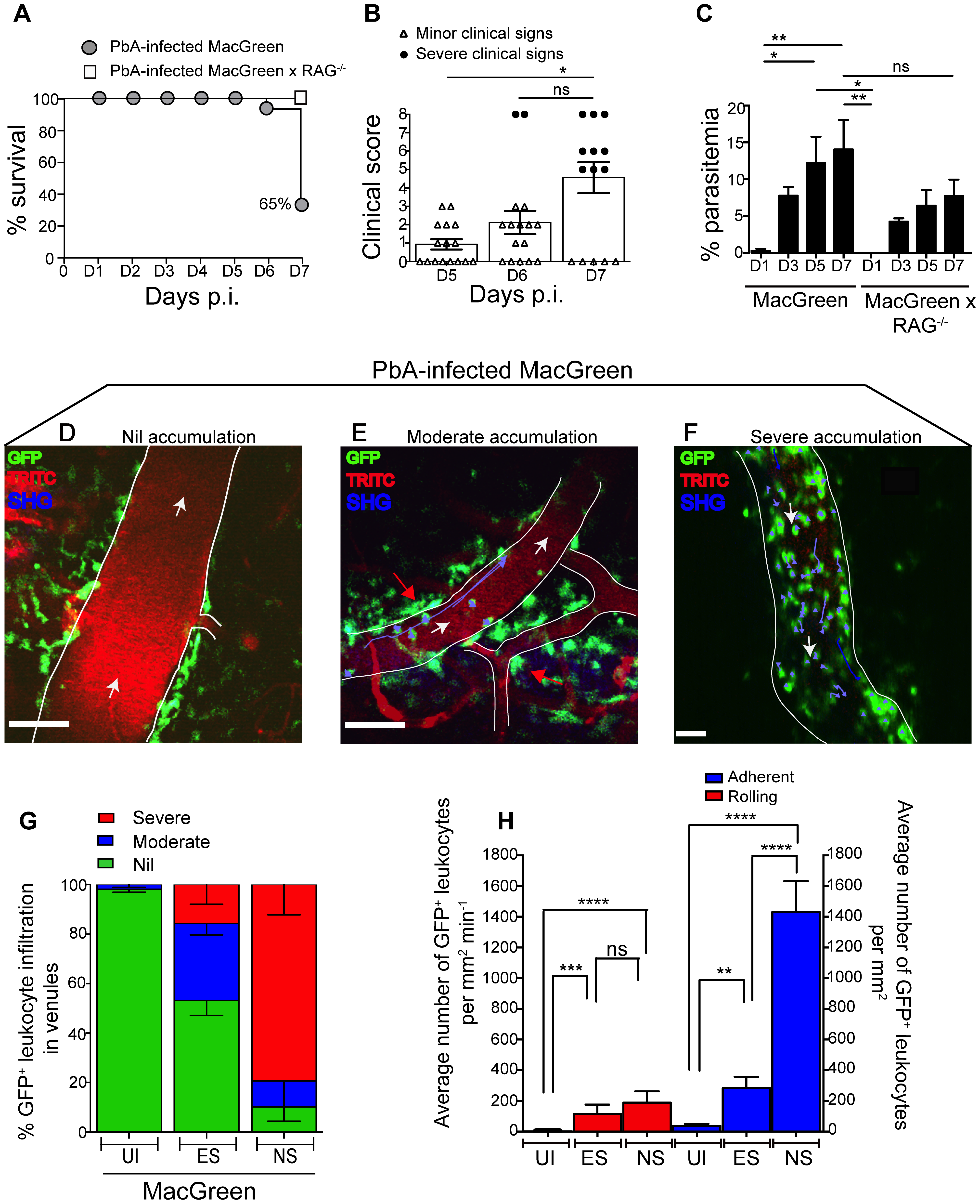 Visualizing the behaviour of GFP<sup>+</sup> leukocytes in the brain microvasculature.
