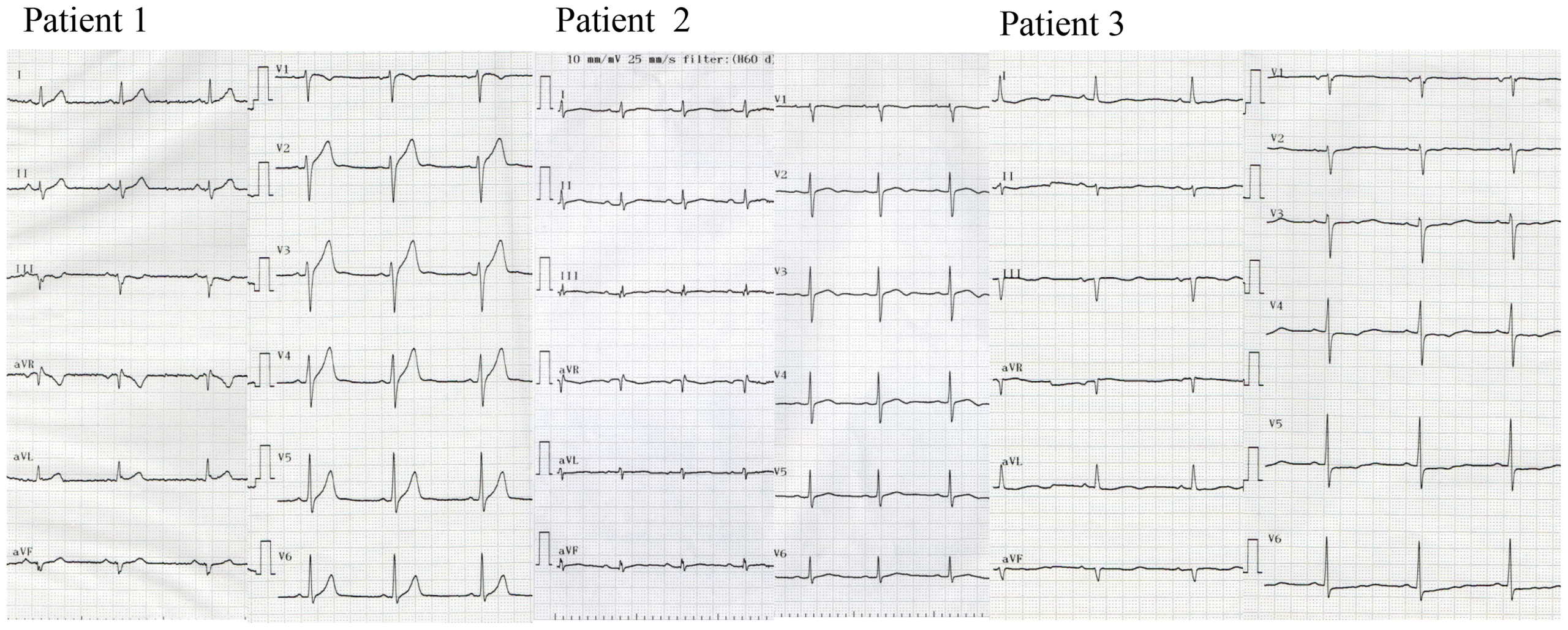 Twelve-lead ECG of patients with <i>SEMA3A</i><sup>I334V</sup>.