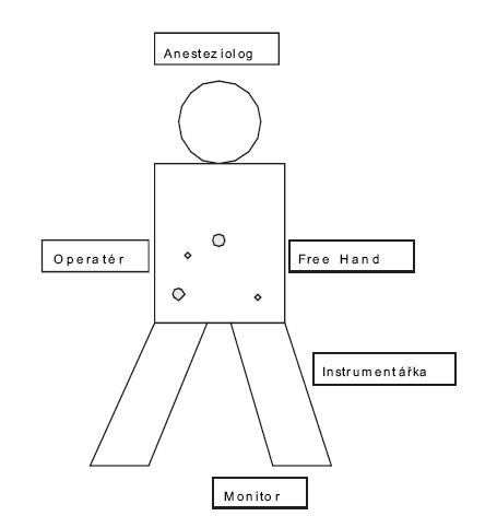Schéma pozice pacienta, týmu a nástrojů u resekce kolon sigmoideum Pic. 1. The schema of position of patients, the operating team, and the instruments in resection of sigmoid colon