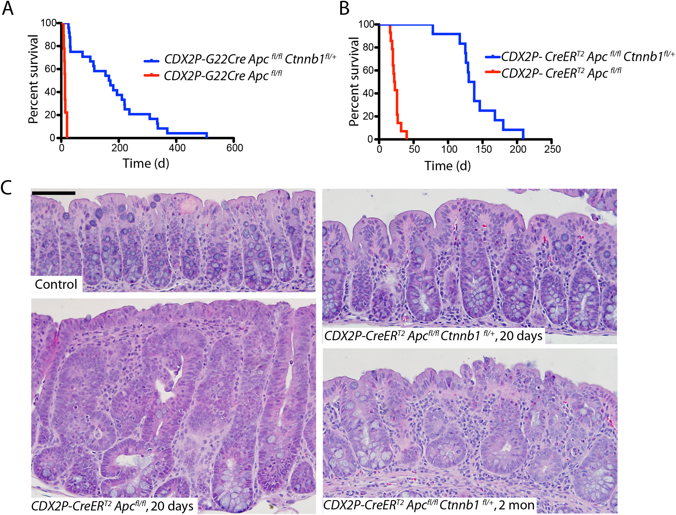 <i>Apc</i> mutation-induced polyposis in mouse cecum and colon epithelium is dramatically inhibited by concurrent inactivation of one <i>Ctnnb1</i> allele.