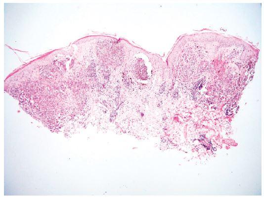 Histologický obraz z probatorní excize V centru dvě velká hnízda pigmentovaných melanocytů a celkově nesouměrná architektura léze jsou při malém zvětšení znaky svědčící pro možnou malignitu (původní zvětšení 40x).