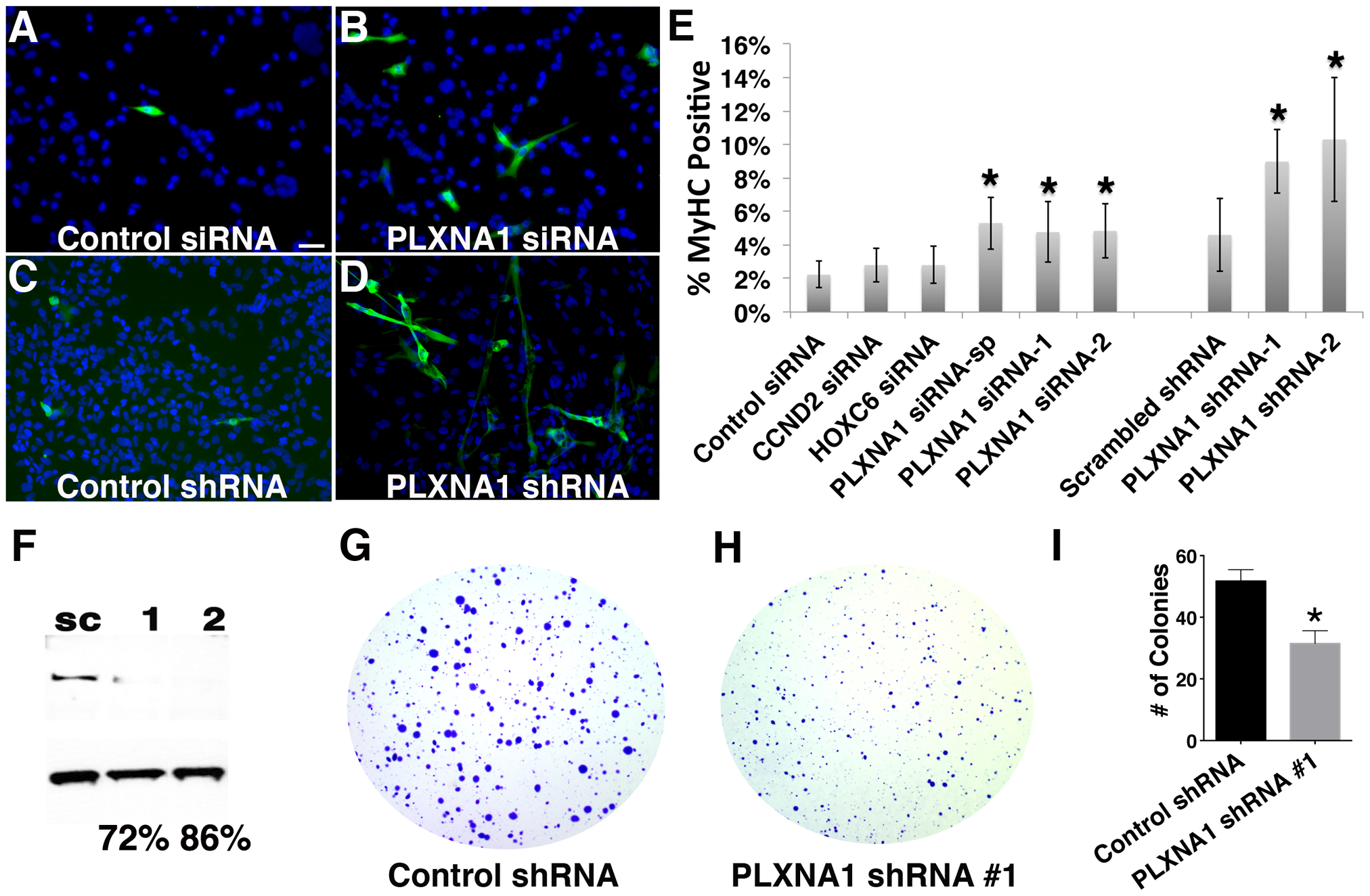 Knockdown of PLXNA1 induced differentiation and impaired anchorage-independent growth of human ERMS cells.