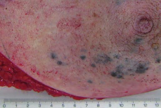 Kůže prsu s prosvítajícími ložisky metastatického melanomu.