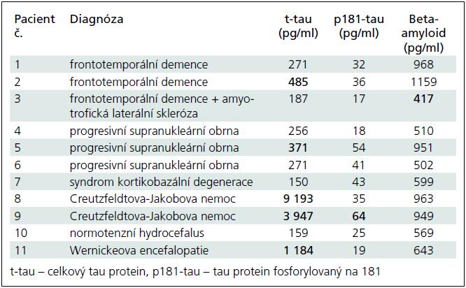 Konkrétní koncentrace t-tau, p181-tau a beta-amyloidu v mozkomíšním moku u skupiny různých forem demencí. Tučně jsou zvýrazněny patologické hodnoty koncentrací podle námi vypočtených hraničních koncentrací pro jednotlivé analyty. Nápadné je zejména extrémní zvýšení t-tau u Creutzfeldtovy-Jakobovy nemoci odpovídající masivnímu rozpadu neuronů v krátkém časovém úseku.