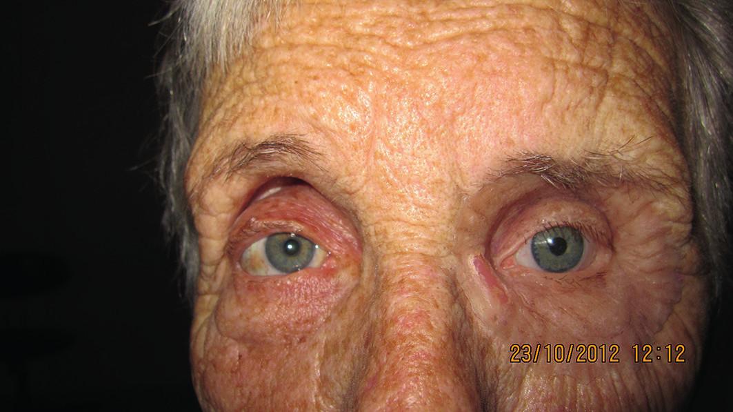 Pacientka s nasadenou epitézou ľavej očnice