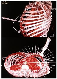 3D rekonstrukce při CT vyšetření