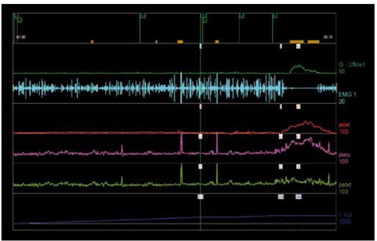 Obr. 4a. Normální cystometrogram s normální detrusoro-sfinkterickou synergií.
